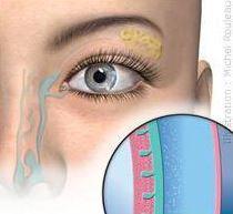 Yeux secs que faire : comment traiter les yeux secs ?